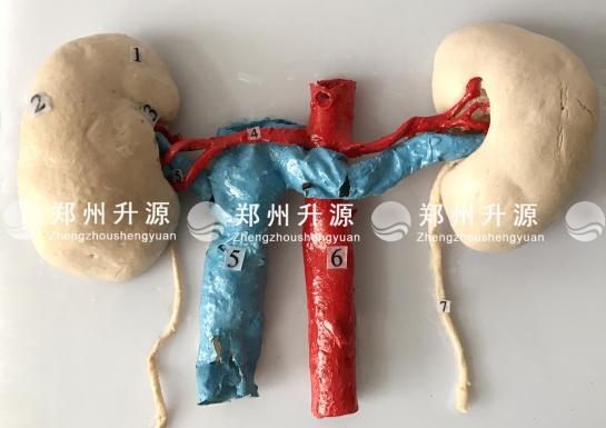 肾的血管解剖标本案例