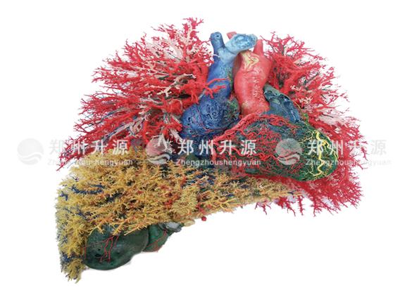 血管铸型标本
