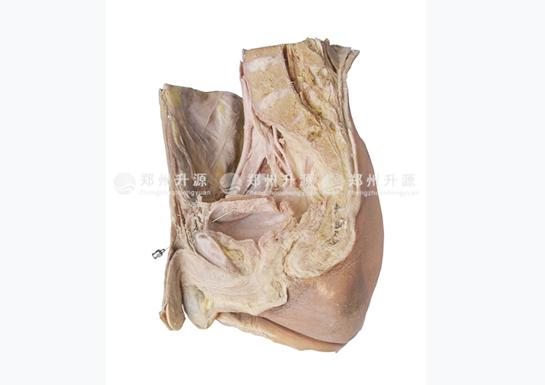 膀胱穿刺标本