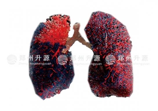 肺管道铸型标本(动脉和静脉)