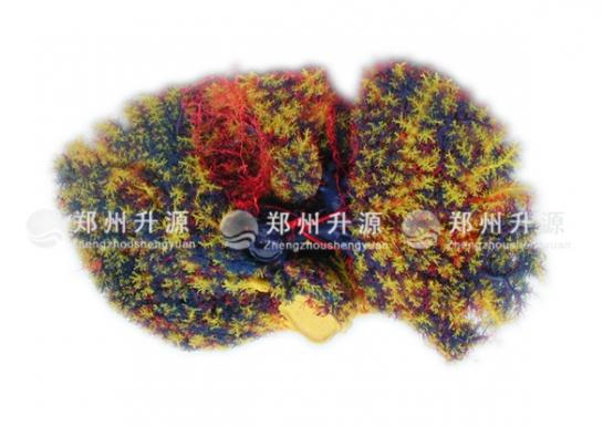 肝血管铸型标本