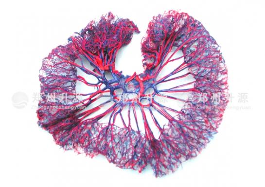 空回肠动静脉铸型标本