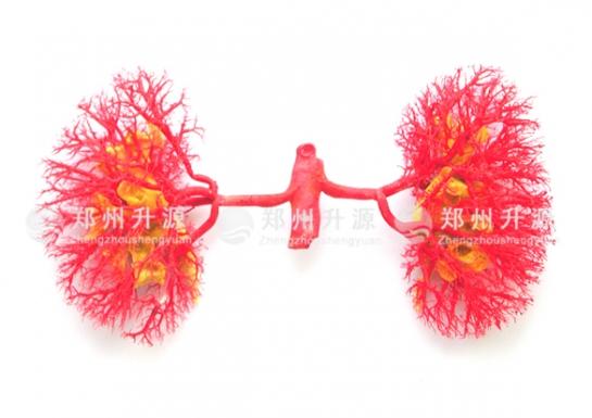 肾动脉、肾盂铸型标本