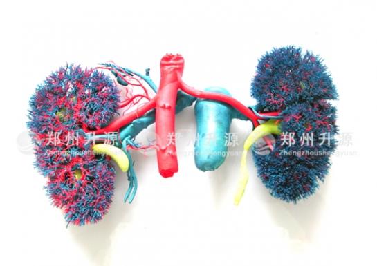 肾血管铸型标本