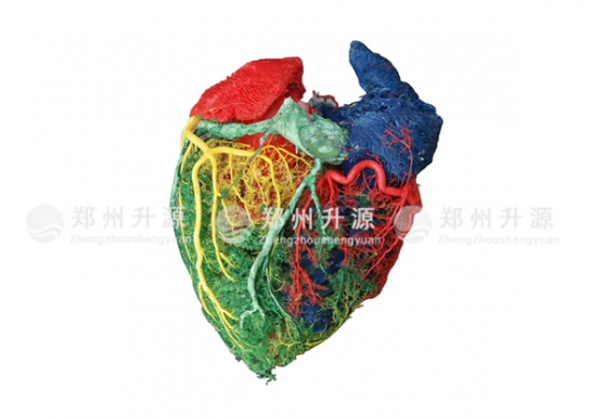 心血管铸型后面观(猪心)