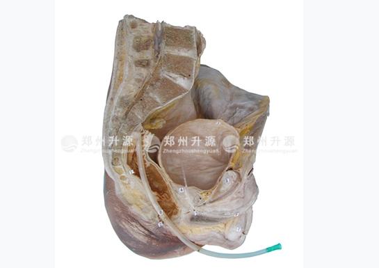 直肠插管、膀胱穿刺标本
