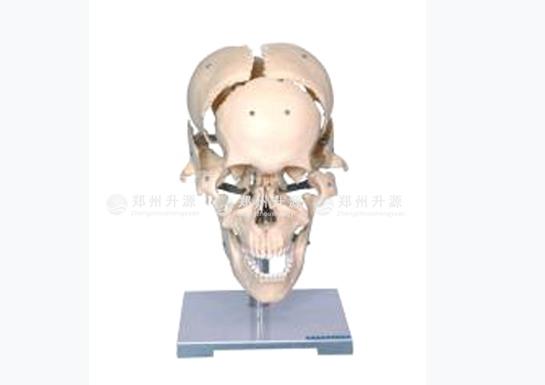 分离颅骨模型