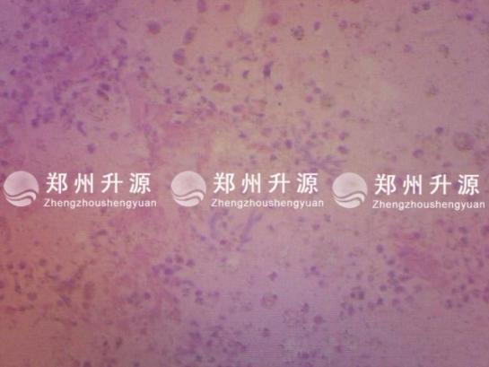 霉菌性肺炎