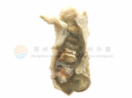 胆囊炎结石