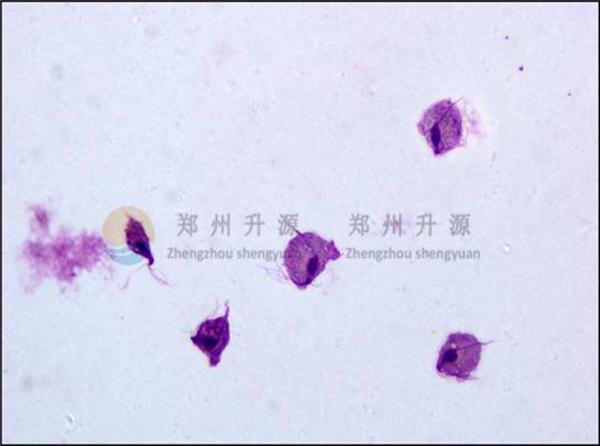 阴道毛滴虫(低倍)