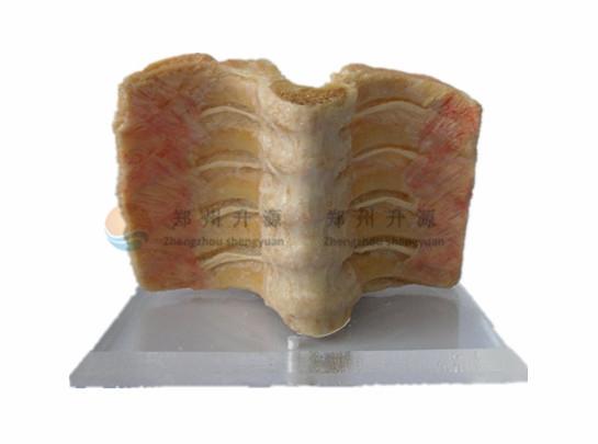 脊髓被膜-塑化标本