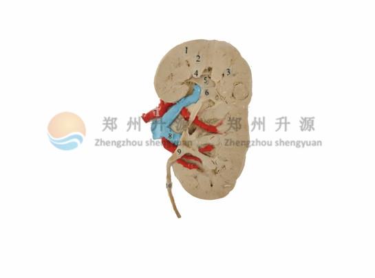 大体标本-肾冠状切面