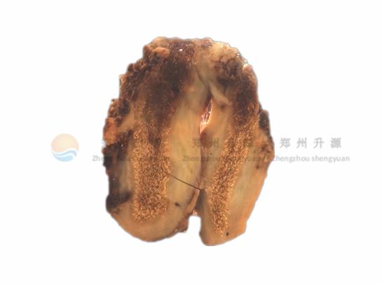 胆囊癌-病理标本